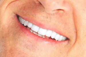 teeth whitening clinics near me