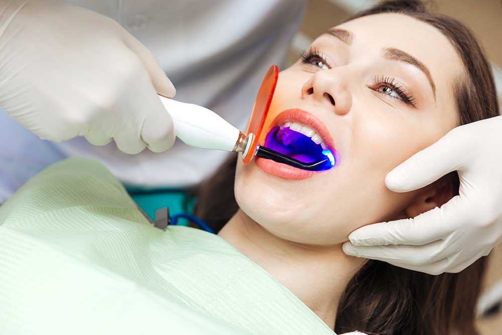 composite fillings dentist