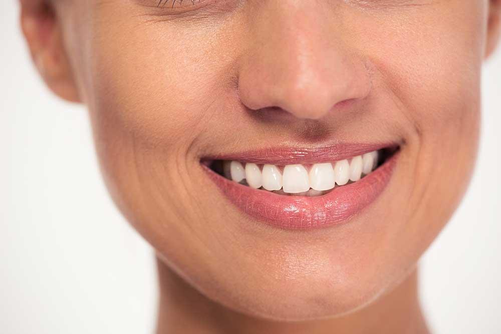 dental bridges dentist